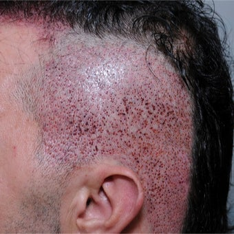 25-34 year old man treated with FUE Hair Transplant before 2437300