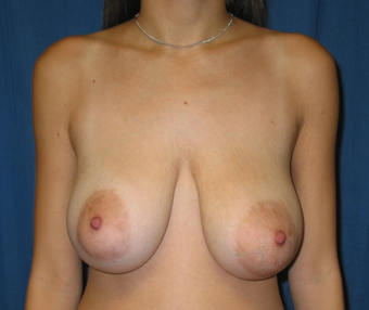Bilateral breast reduction and Bilateral breast lift 1747845