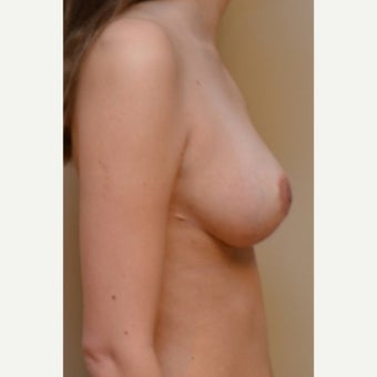 Bilateral breast reduction and Bilateral breast lift after 1747845