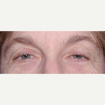 55-64 year old woman treated with Ptosis Surgery before 3042134