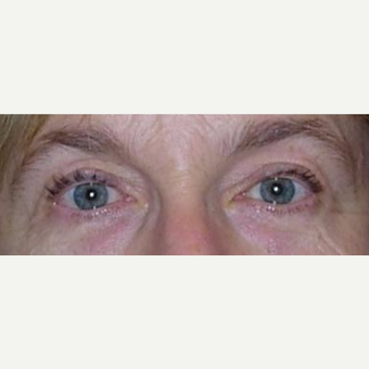 55-64 year old woman treated with Ptosis Surgery after 3042134