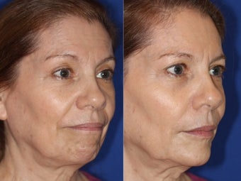 Liquid facelift with cheek and chin augmentation using facial filler after 1460059