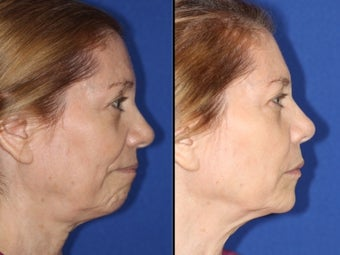 Liquid facelift with cheek and chin augmentation using facial filler 1460059