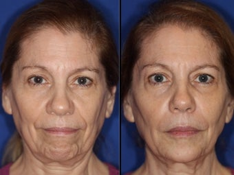 Liquid facelift with cheek and chin augmentation using facial filler before 1460059