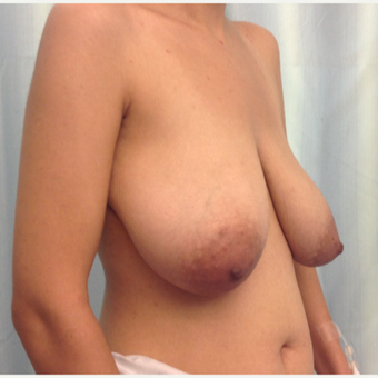 35-44 year old woman requesting Breast Lift before 3032768