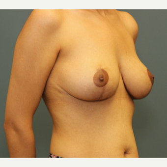 35-44 year old woman requesting Breast Lift after 3032768