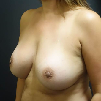 45-54 year old woman treated with Breast Implants after 3457923