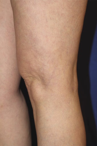 spider vein treatments after 450610