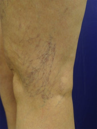 spider vein treatments before 450610