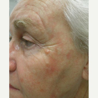 TCA Peel for sun damage and wrinkles before 1769769