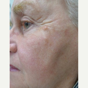 TCA Peel for sun damage and wrinkles after 1769769