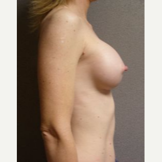 35-44 year old woman treated with Breast Implants after 3108561
