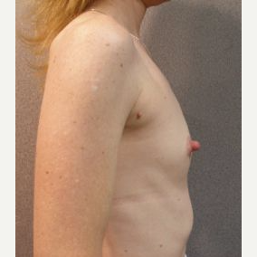 35-44 year old woman treated with Breast Implants before 3108561