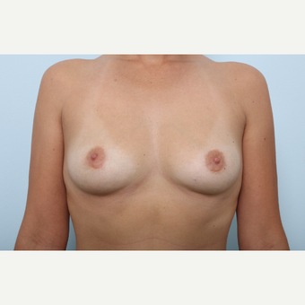 Breast Augmentation before 3459834