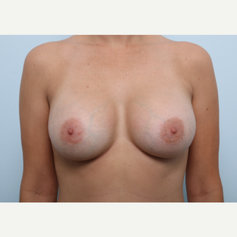 Breast Augmentation after 3459834