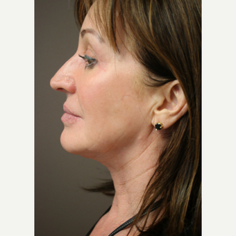 Neck lift, minimally invasive after 3622139