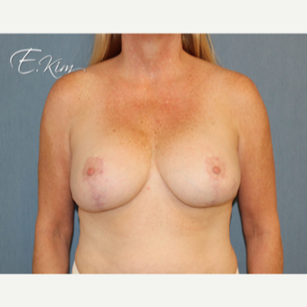 35-44 year old woman treated with Breast Lift with Implants after 3102611
