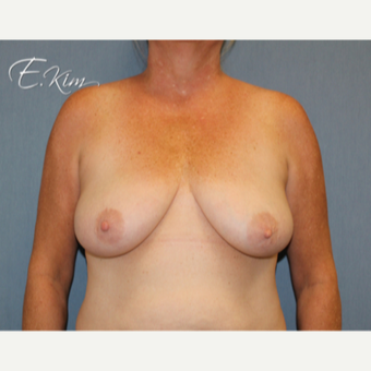 35-44 year old woman treated with Breast Lift with Implants before 3102611
