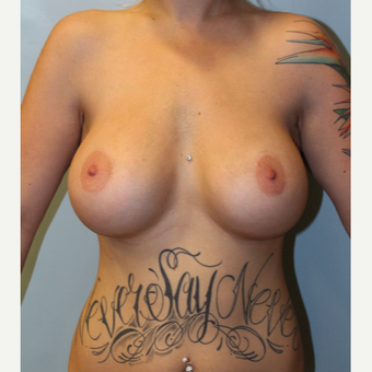 25-34 year old woman treated with Breast Implants after 3692163