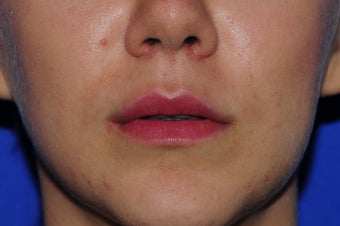 22 year old woman treated with Lip Augmentation 3163362