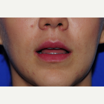 22 year old woman treated with Lip Augmentation before 3163362