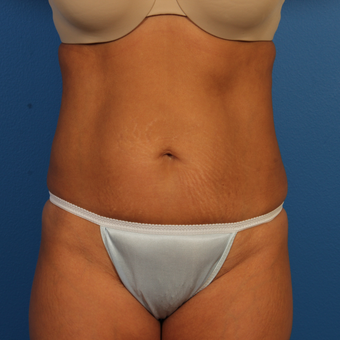 35-44 year old woman treated with Tummy Tuck before 3684777