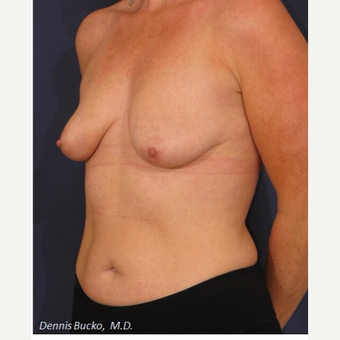 35-44 year old woman treated with Breast Augmentation before 3523293
