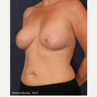 35-44 year old woman treated with Breast Augmentation after 3523293