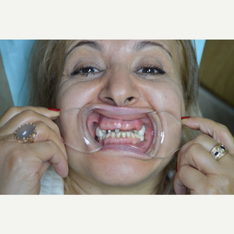 55-64 year old woman treated with Smile Makeover before 3331868