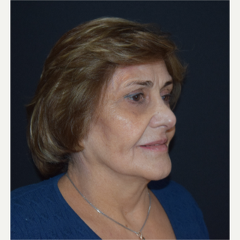 65-74 year old woman treated with Facelift before 3498767