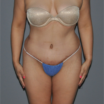 35-44 year old woman treated with Tummy Tuck after 2999624