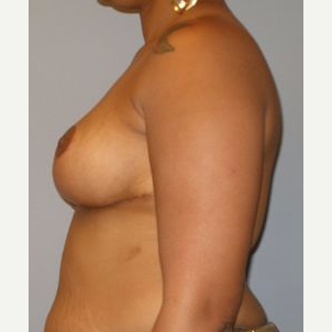 35-44 year old woman treated with Breast Reduction after 3122574