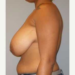 35-44 year old woman treated with Breast Reduction before 3122574