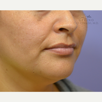 25-34 year old woman treated with Lip Augmentation before 3421883
