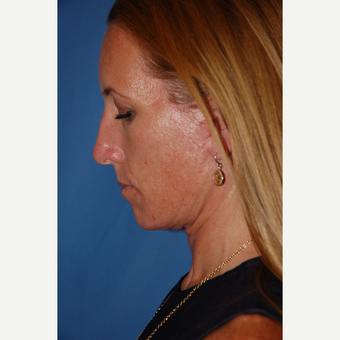 35-44 year old woman treated with Facelift after 3610238