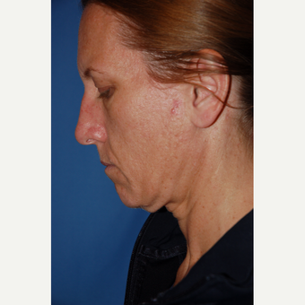 35-44 year old woman treated with Facelift before 3610238