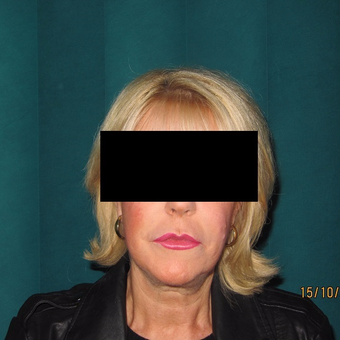 Advanced Mini Facelift Treatment before 3139797