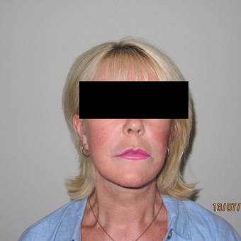 Advanced Mini Facelift Treatment after 3139797