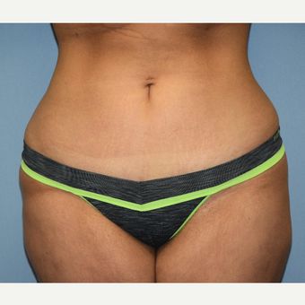 18-24 year old woman treated with Mini Tummy Tuck after 3703158
