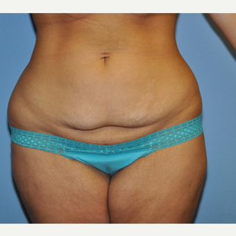 18-24 year old woman treated with Mini Tummy Tuck before 3703158
