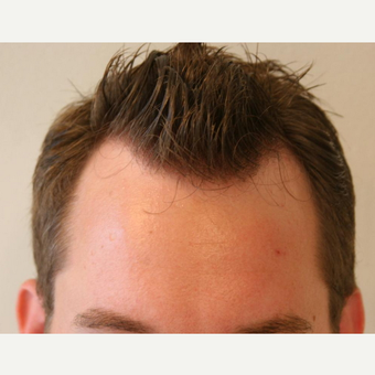 25-34 year old man treated with FUE Hair Transplant before 2817928