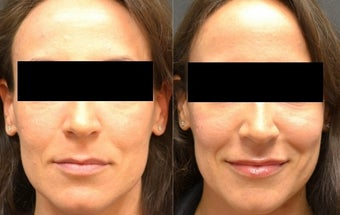 Restylane Filler to Cheeks and Lips before 1306505