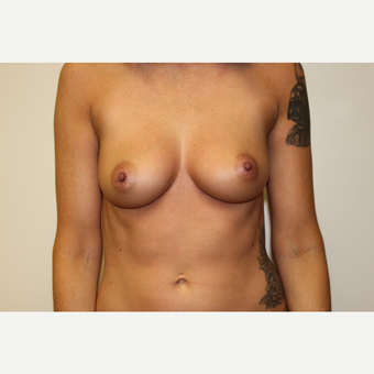 Breast Augmentation before 3418095