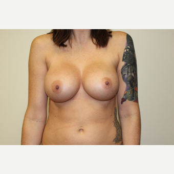 Breast Augmentation after 3418095