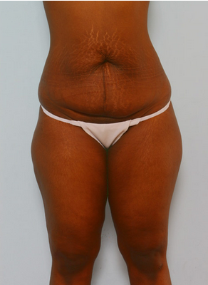 Tummy Tuck before 917936