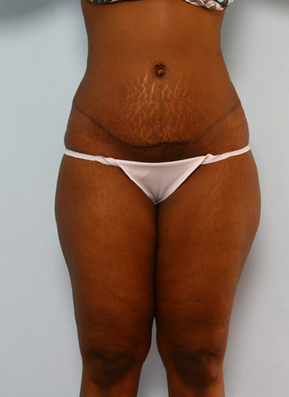Tummy Tuck after 917936