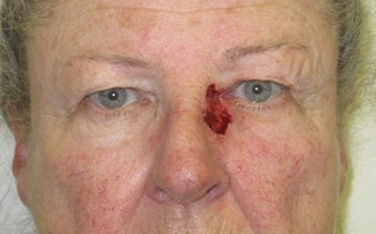 Eyelid and cheek basal cell carcinoma before 875949