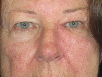 Eyelid and cheek basal cell carcinoma after 875949