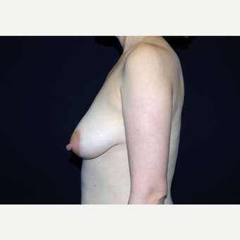 35-44 year old woman treated with Breast Implants before 3441016