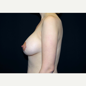 35-44 year old woman treated with Breast Implants after 3441016